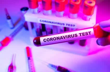 American public in the search for novel coronavirus testing areas